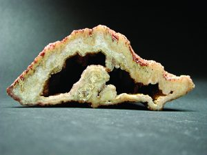 Amygdale cross section